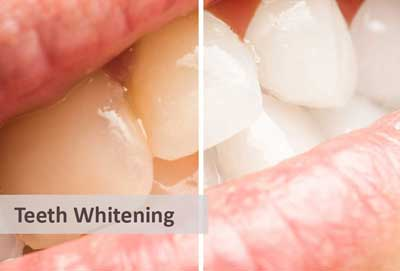 teeth-whitening comparison